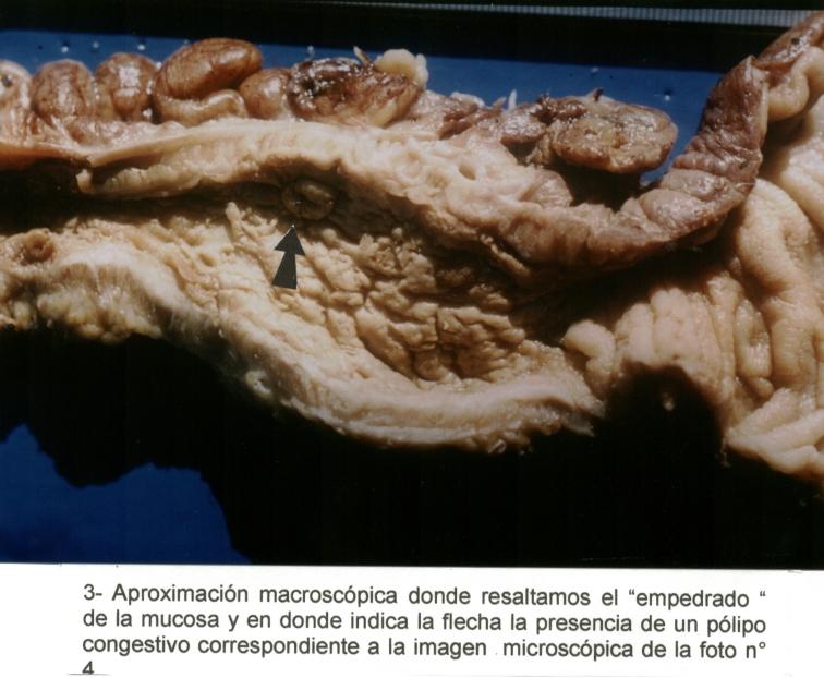 III Congreso Virtual Hispanoamericano de Anatomía Patológica