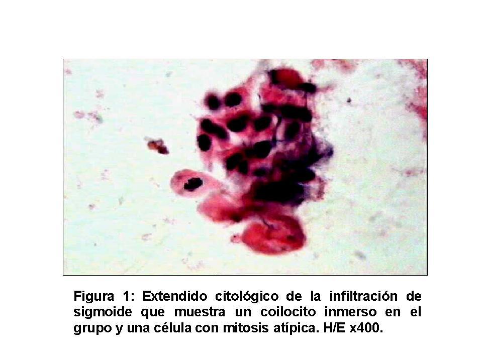VI Congreso Virtual Hispanoamericano de Anatomía Patológica