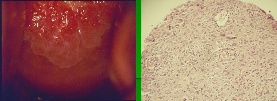 virus papiloma fase 3 plasturi talpa detoxifiere