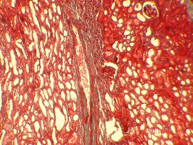 duzzadt ízület a mutatóujj kezelésénél diffúz kötőszöveti betegségek mi az