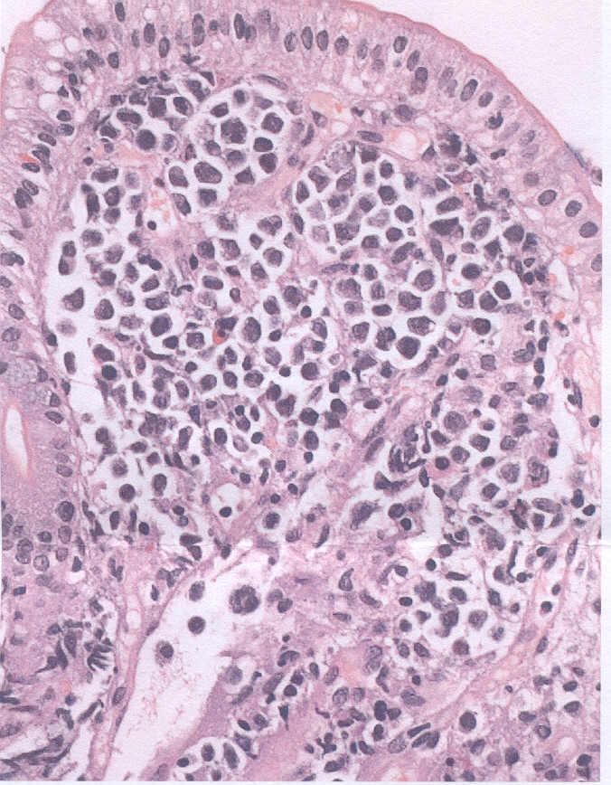 celulas linfoma: