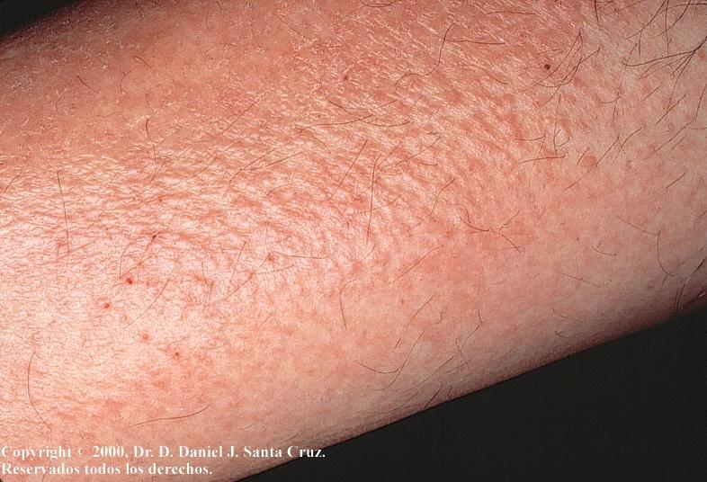 what dermatitis #10